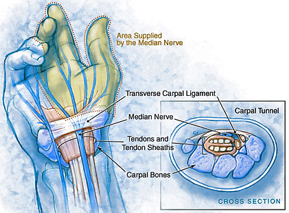 The carpal tunnel consists of eight carpal bones that form the ceiling,